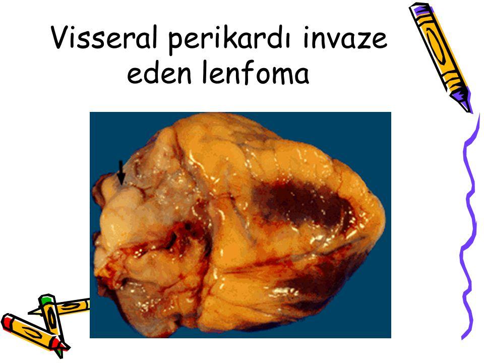 Visseral perikardı invaze eden lenfoma