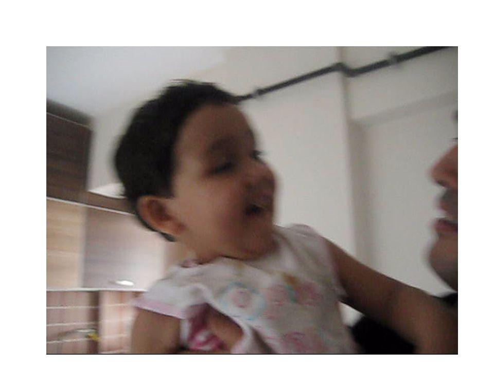 VertigoPseudovertigo Selim paroksismal pozisyonel vertigoAritmi Çocukluk çağının selim paroksismalvertigosuAnemi KolesteatomaAnksiyete MSS enfeksiyonuDepresyon Labirintit (Vestibüler nörit)Hiperventilasyon MastoiditHipoglisemi Meniere hastalığıOrtostatik hipotansiyon Orta kulak travmasıZehirlenme/ İlaç yan etkisi Orta kulak iltihabıGebelik MigrenPresenkop Hareket hastalığıGörsel bozukluklar Demiyelinizan hastalıklar Perilenf fistülü İlaç zehirlenmesi/yan etkisi Ramsay Hunt sendromu Epileptik nöbet İnme Tümör