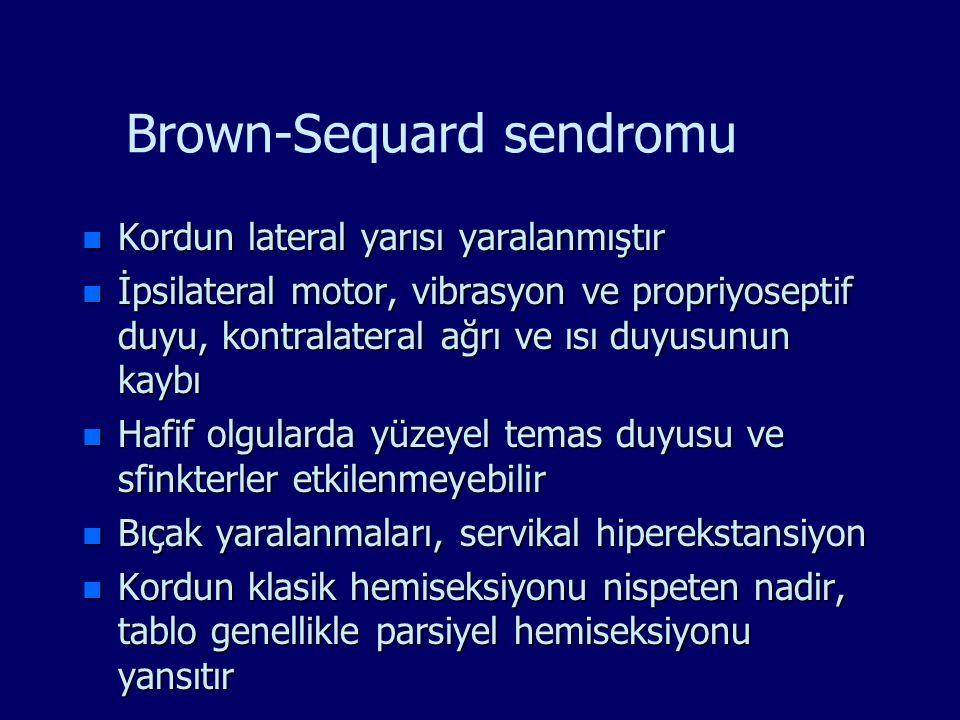Brown-Sequard sendromu n Kordun lateral yarısı yaralanmıştır n İpsilateral motor, vibrasyon ve propriyoseptif duyu, kontralateral ağrı ve ısı duyusunu