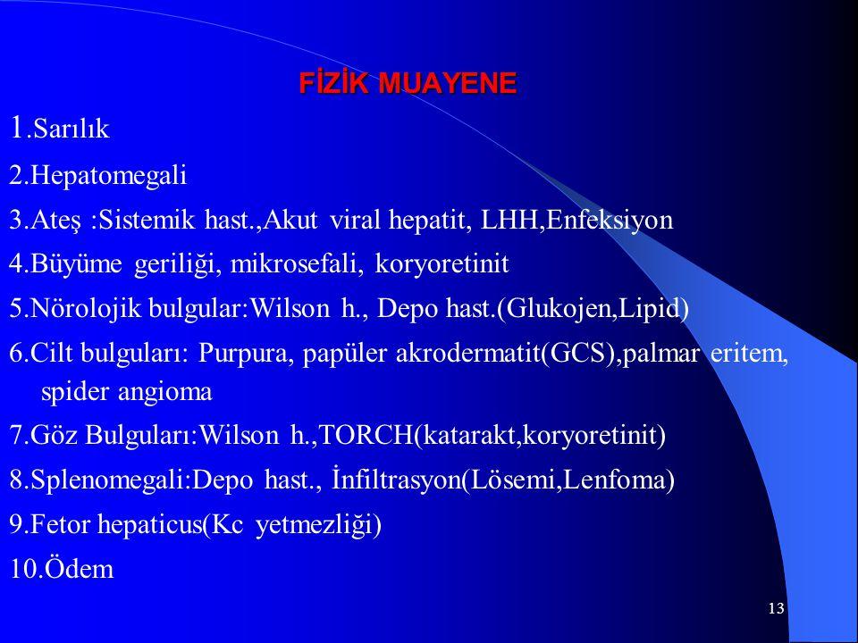 13 FİZİK MUAYENE 1.Sarılık 2.Hepatomegali 3.Ateş :Sistemik hast.,Akut viral hepatit, LHH,Enfeksiyon 4.Büyüme geriliği, mikrosefali, koryoretinit 5.Nörolojik bulgular:Wilson h., Depo hast.(Glukojen,Lipid) 6.Cilt bulguları: Purpura, papüler akrodermatit(GCS),palmar eritem, spider angioma 7.Göz Bulguları:Wilson h.,TORCH(katarakt,koryoretinit) 8.Splenomegali:Depo hast., İnfiltrasyon(Lösemi,Lenfoma) 9.Fetor hepaticus(Kc yetmezliği) 10.Ödem