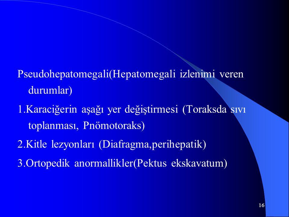 16 Pseudohepatomegali(Hepatomegali izlenimi veren durumlar) 1.Karaciğerin aşağı yer değiştirmesi (Toraksda sıvı toplanması, Pnömotoraks) 2.Kitle lezyonları (Diafragma,perihepatik) 3.Ortopedik anormallikler(Pektus ekskavatum)