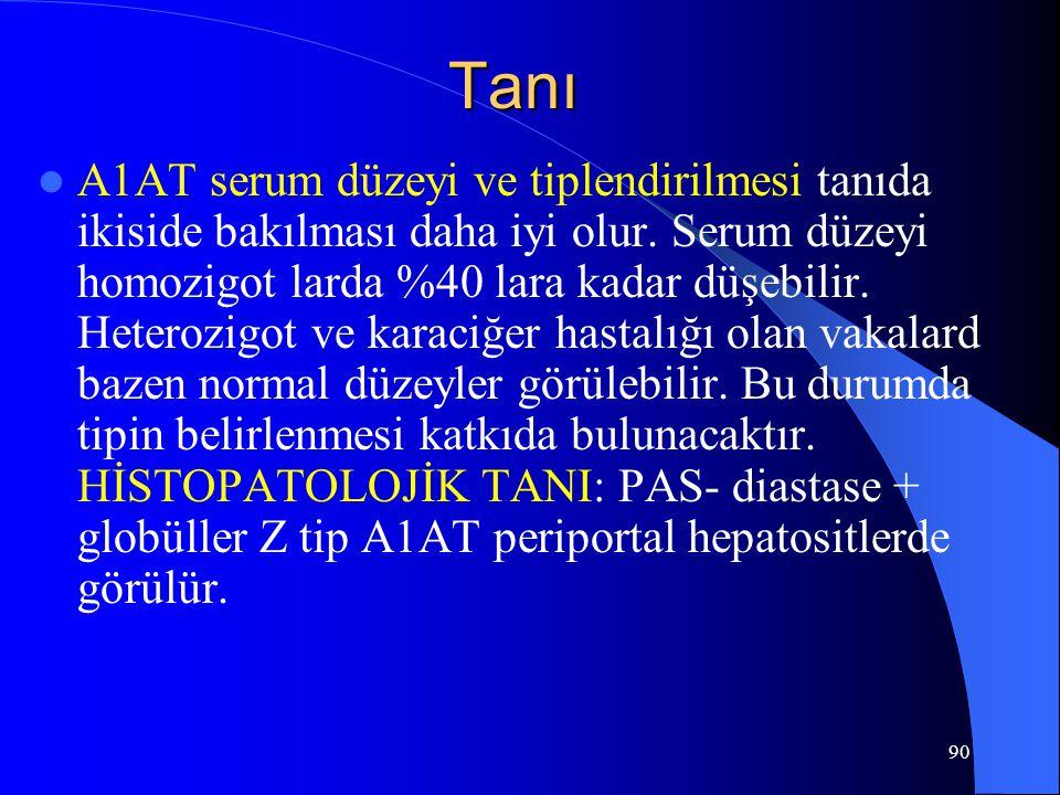 90 Tanı A1AT serum düzeyi ve tiplendirilmesi tanıda ikiside bakılması daha iyi olur. Serum düzeyi homozigot larda %40 lara kadar düşebilir. Heterozigo