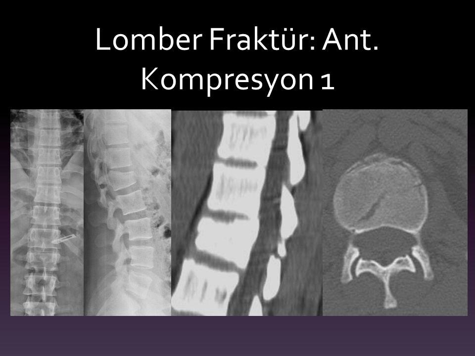 Lomber Fraktür: Ant. Kompresyon 1