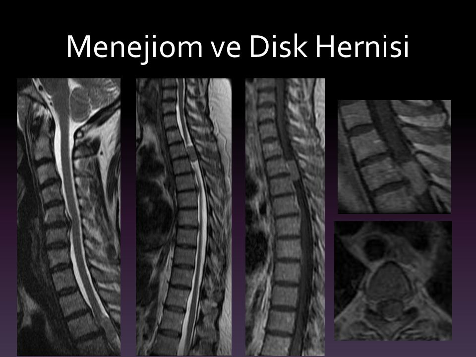 Menejiom ve Disk Hernisi