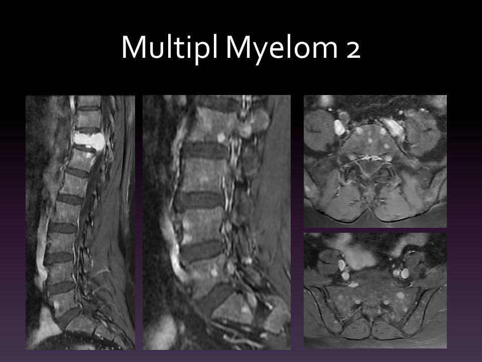 Multipl Myelom 2