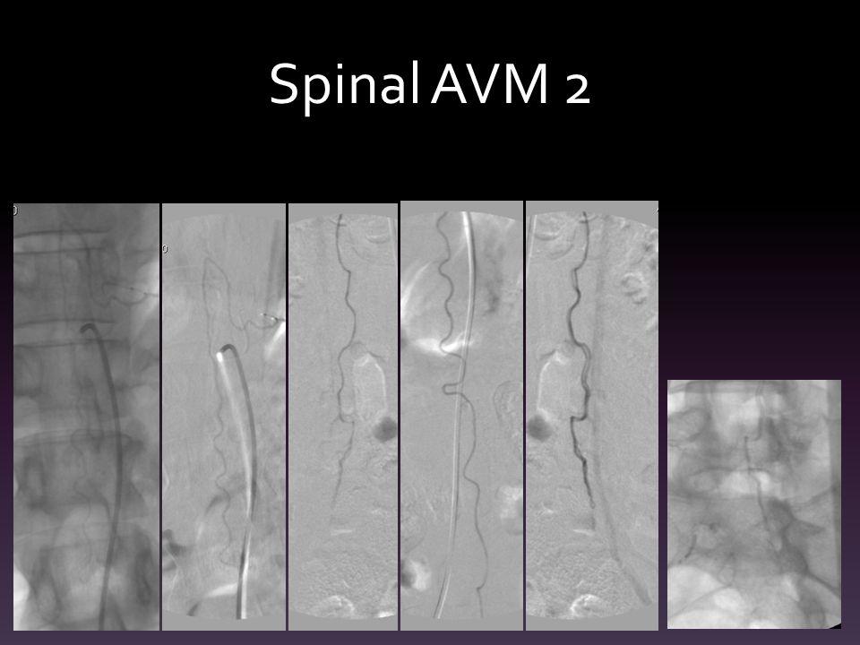 Spinal AVM 2