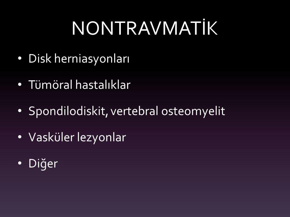 NONTRAVMATİK Disk herniasyonları Tümöral hastalıklar Spondilodiskit, vertebral osteomyelit Vasküler lezyonlar Diğer