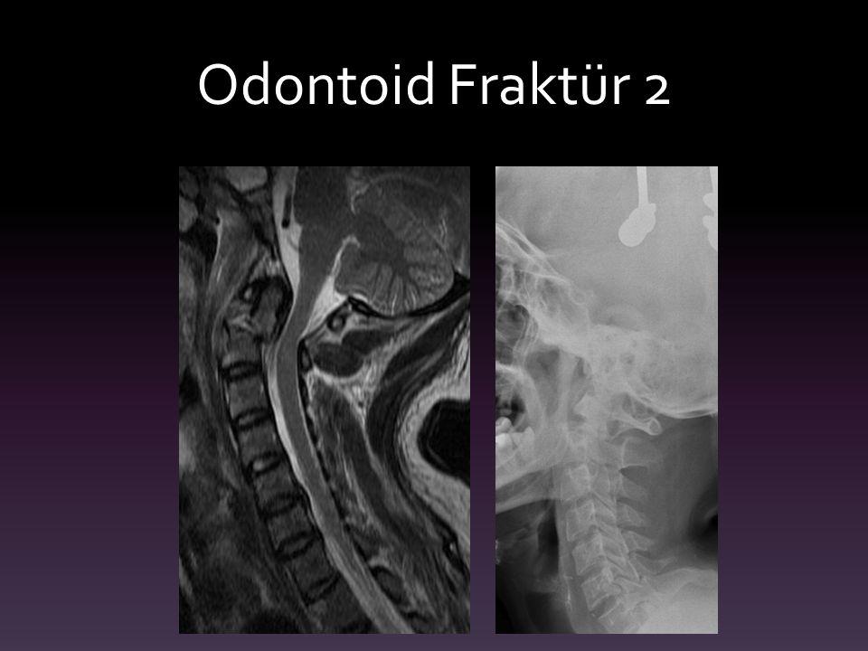 Odontoid Fraktür