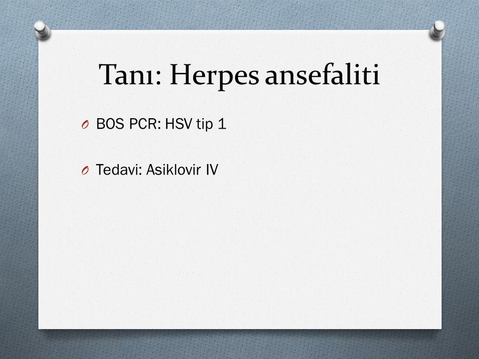 Tanı: Herpes ansefaliti O BOS PCR: HSV tip 1 O Tedavi: Asiklovir IV