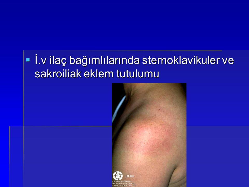  İ.v ilaç bağımlılarında sternoklavikuler ve sakroiliak eklem tutulumu