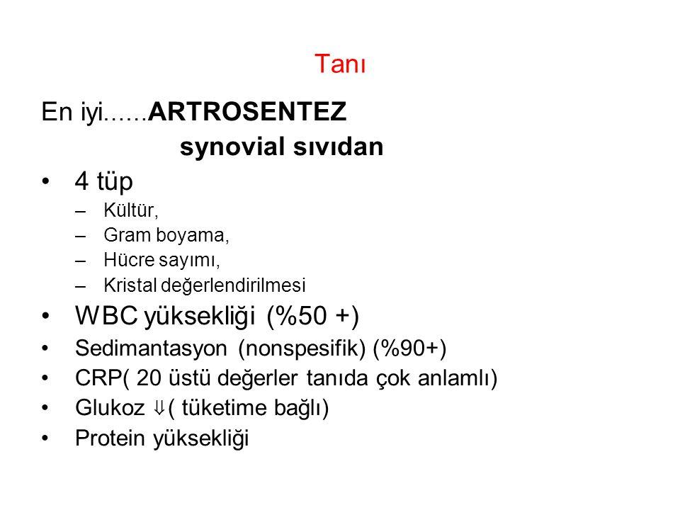 Tanı En iyi …… ARTROSENTEZ synovial sıvıdan 4 tüp –Kültür, –Gram boyama, –Hücre sayımı, –Kristal değerlendirilmesi WBC yüksekliği (%50 +) Sedimantasyo