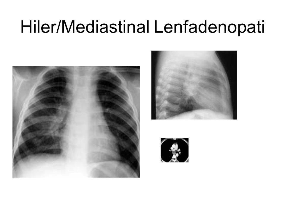 Hiler/Mediastinal Lenfadenopati