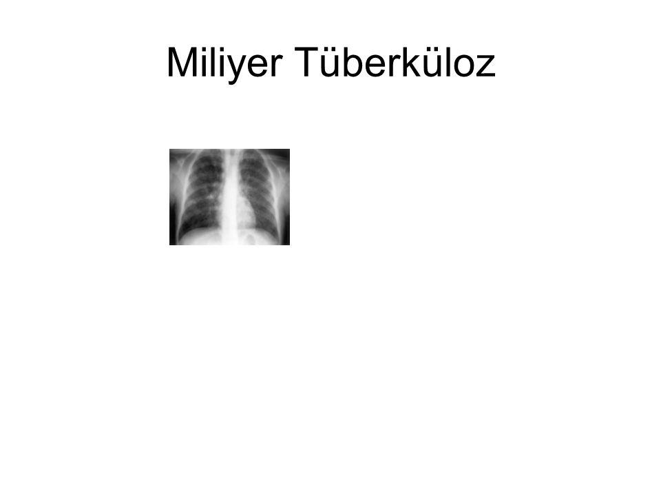 Miliyer Tüberküloz