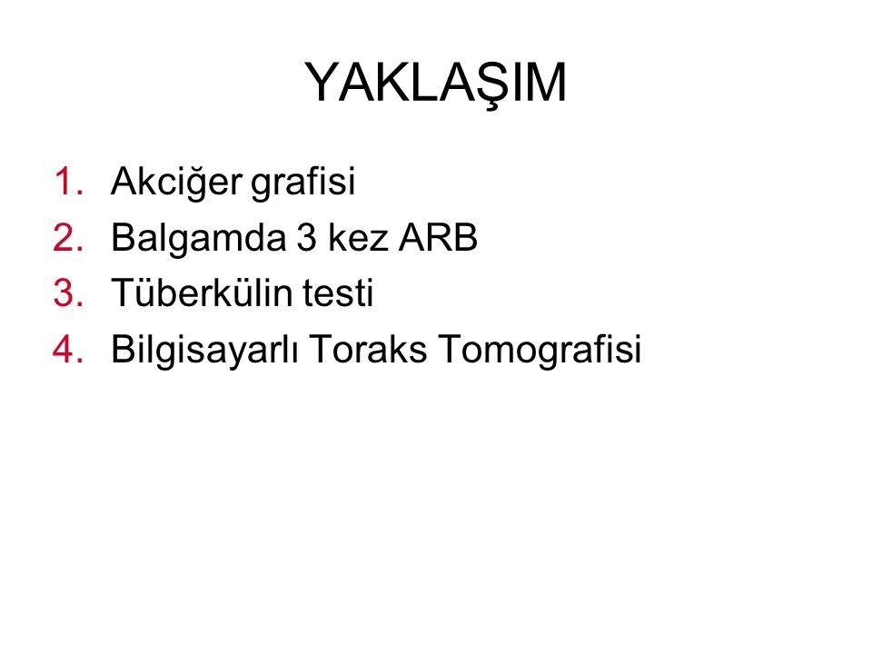 YAKLAŞIM 1.Akciğer grafisi 2.Balgamda 3 kez ARB 3.Tüberkülin testi 4.Bilgisayarlı Toraks Tomografisi