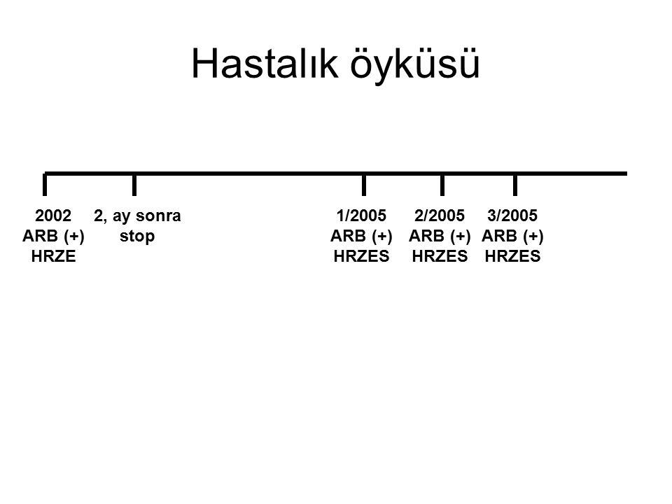Hastalık öyküsü 2002 ARB (+) HRZE 2, ay sonra stop 1/2005 ARB (+) HRZES 2/2005 ARB (+) HRZES 3/2005 ARB (+) HRZES