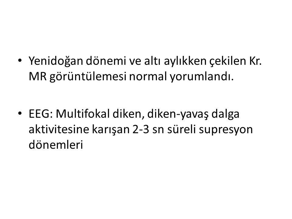 Yenidoğan dönemi ve altı aylıkken çekilen Kr. MR görüntülemesi normal yorumlandı. EEG: Multifokal diken, diken-yavaş dalga aktivitesine karışan 2-3 sn