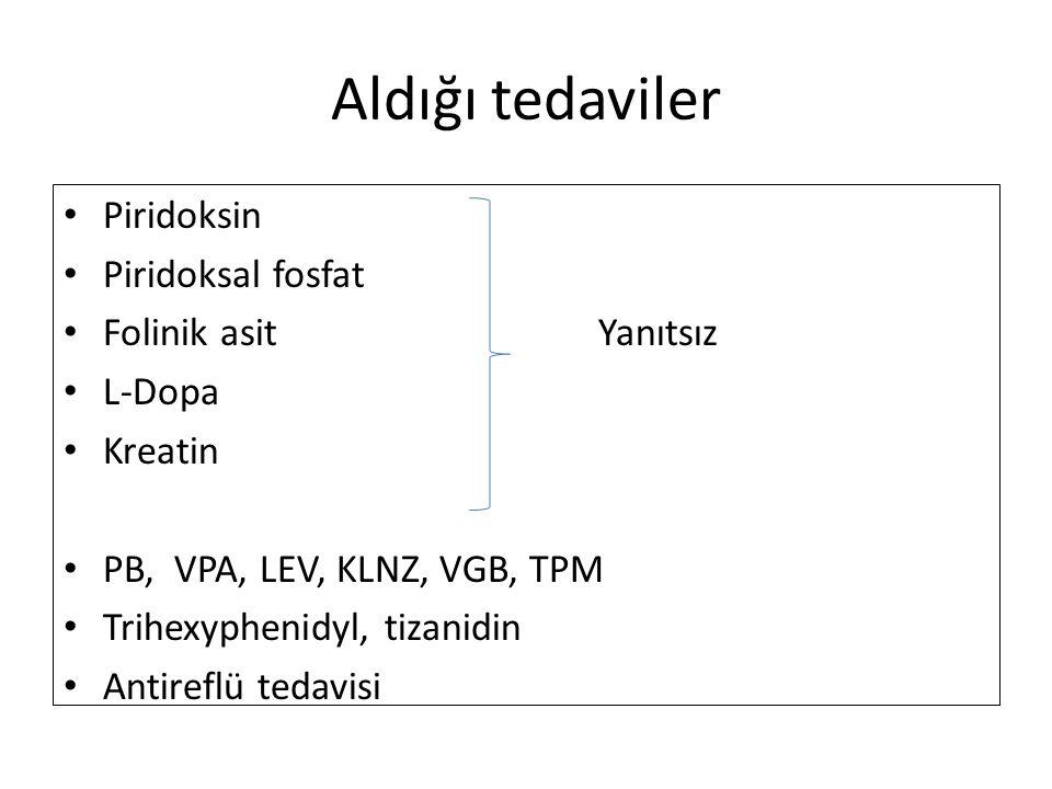 Aldığı tedaviler Piridoksin Piridoksal fosfat Folinik asit Yanıtsız L-Dopa Kreatin PB, VPA, LEV, KLNZ, VGB, TPM Trihexyphenidyl, tizanidin Antireflü t