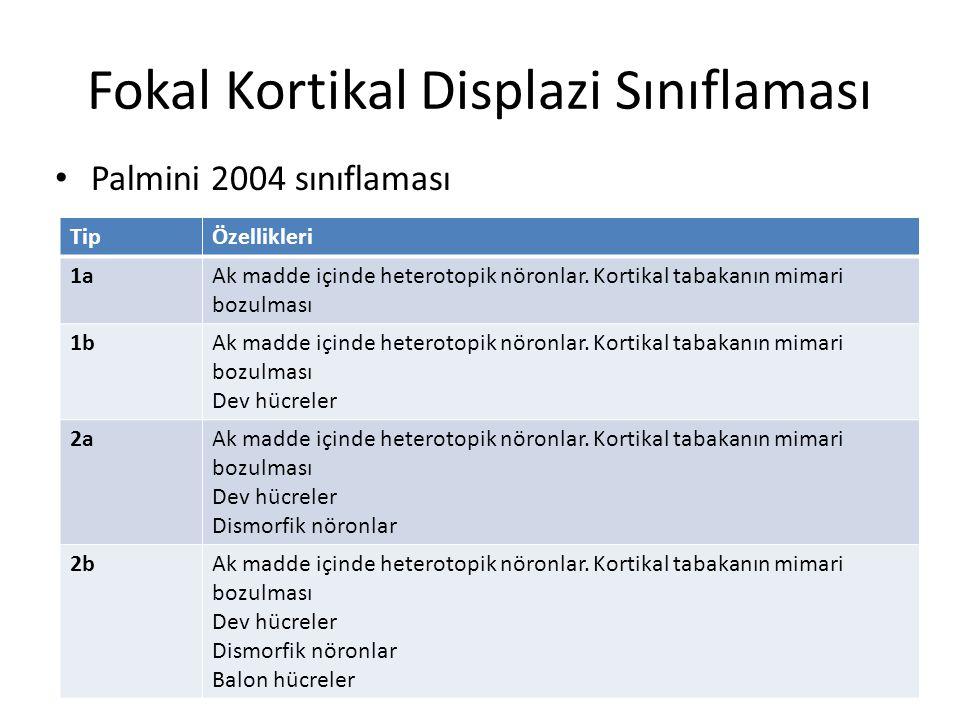 Fokal Kortikal Displazi Sınıflaması Palmini 2004 sınıflaması TipÖzellikleri 1aAk madde içinde heterotopik nöronlar. Kortikal tabakanın mimari bozulmas