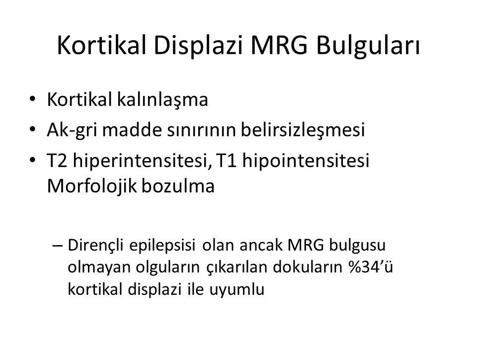 Kortikal Displazi MRG Bulguları Kortikal kalınlaşma Ak-gri madde sınırının belirsizleşmesi T2 hiperintensitesi, T1 hipointensitesi Morfolojik bozulma