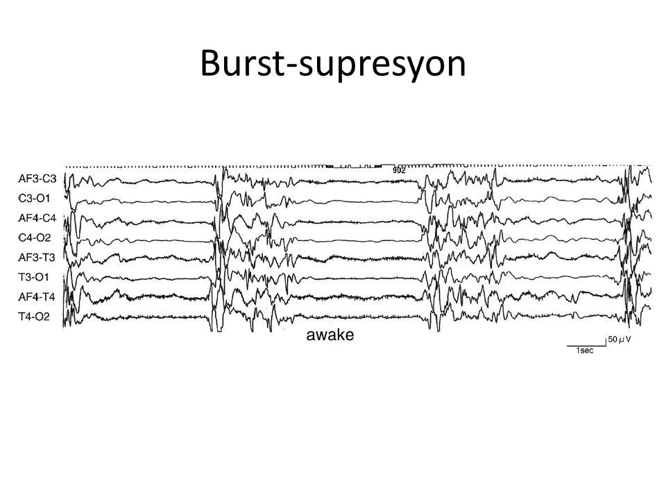 Diskinetik hareket bozukluğu-Epileptik ensefalopati BOS nörotransmitter incelemesi normal (Hollanda Radboud Üniversitesi Biyokimya Lab.
