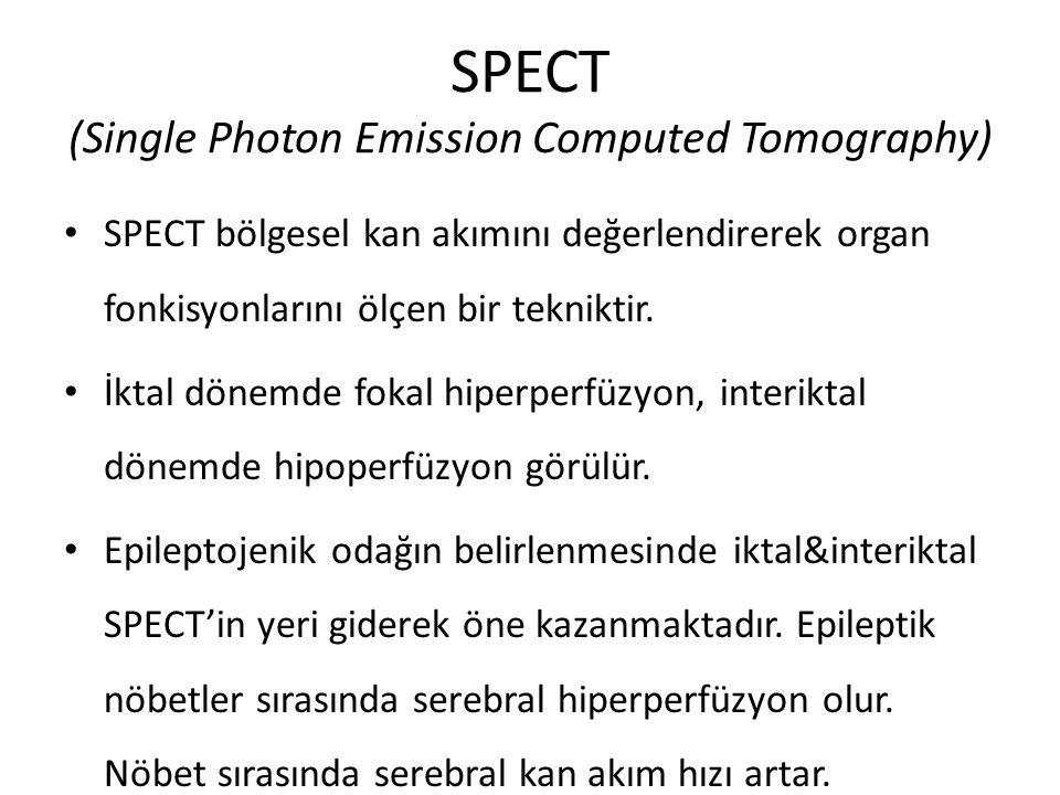 SPECT (Single Photon Emission Computed Tomography) SPECT bölgesel kan akımını değerlendirerek organ fonkisyonlarını ölçen bir tekniktir. İktal dönemde