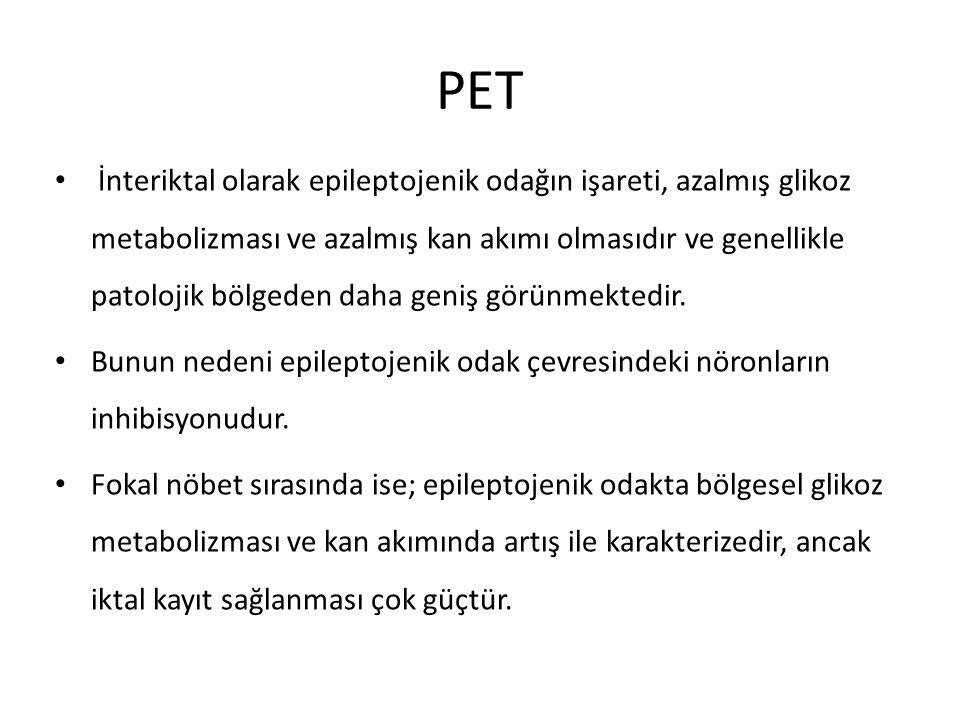 PET İnteriktal olarak epileptojenik odağın işareti, azalmış glikoz metabolizması ve azalmış kan akımı olmasıdır ve genellikle patolojik bölgeden daha