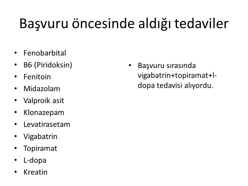 Aldığı tedaviler Piridoksin Piridoksal fosfat Folinik asit Yanıtsız L-Dopa Kreatin PB, VPA, LEV, KLNZ, VGB, TPM Trihexyphenidyl, tizanidin Antireflü tedavisi