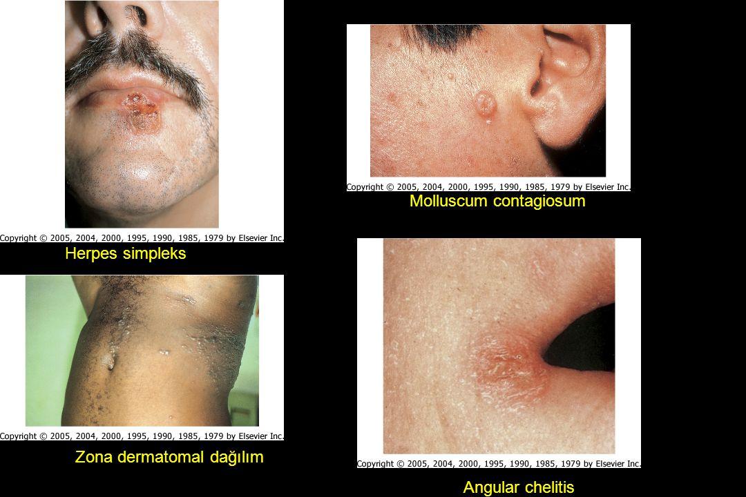 Herpes simpleks Angular chelitis Molluscum contagiosum Zona dermatomal dağılım