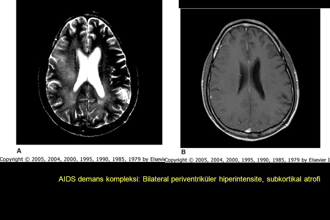AIDS demans kompleksi: Bilateral periventriküler hiperintensite, subkortikal atrofi