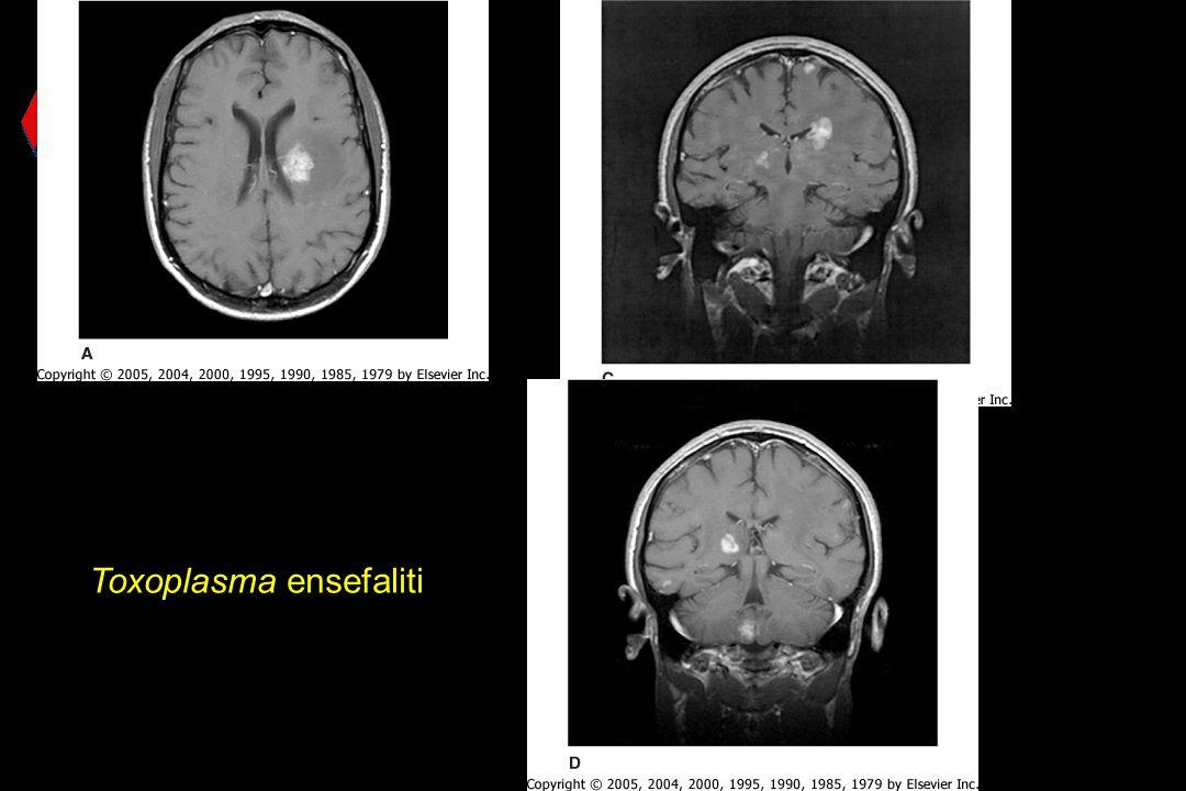 Toxoplasma ensefaliti
