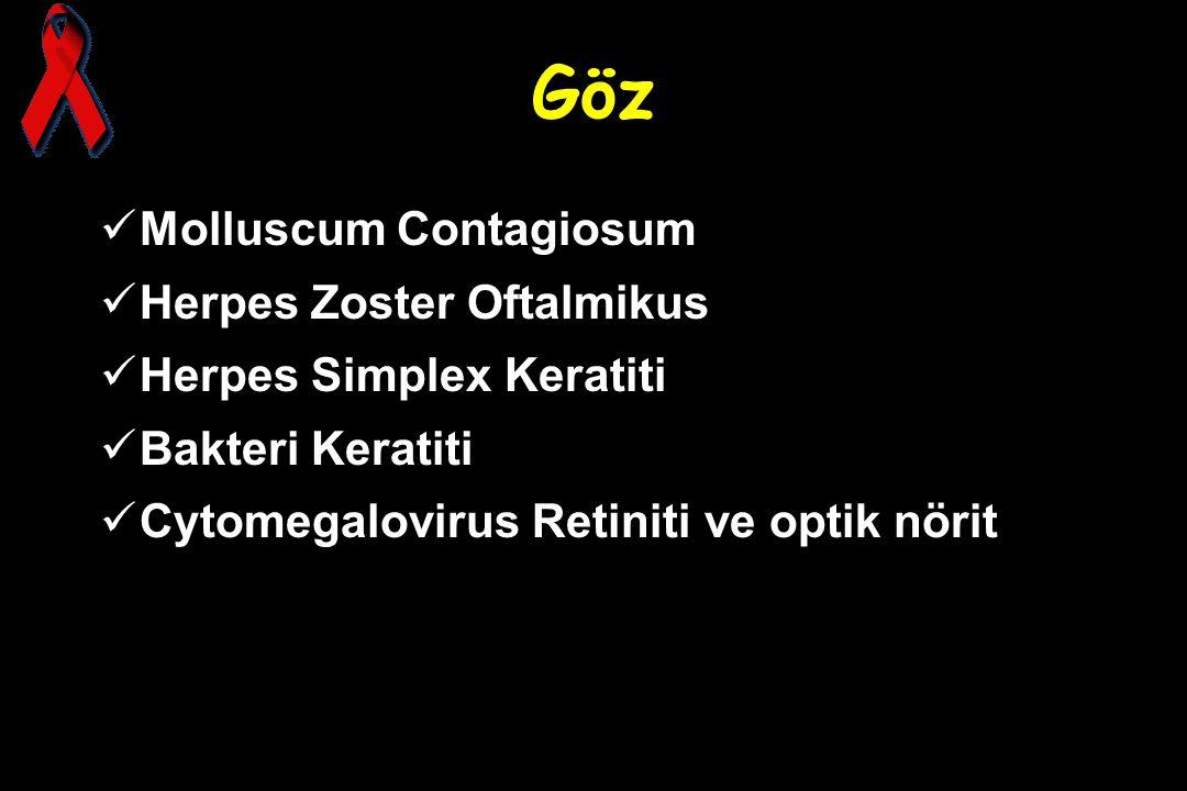 Göz Molluscum Contagiosum Herpes Zoster Oftalmikus Herpes Simplex Keratiti Bakteri Keratiti Cytomegalovirus Retiniti ve optik nörit