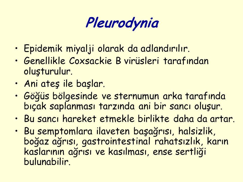 Pleurodynia Epidemik miyalji olarak da adlandırılır.