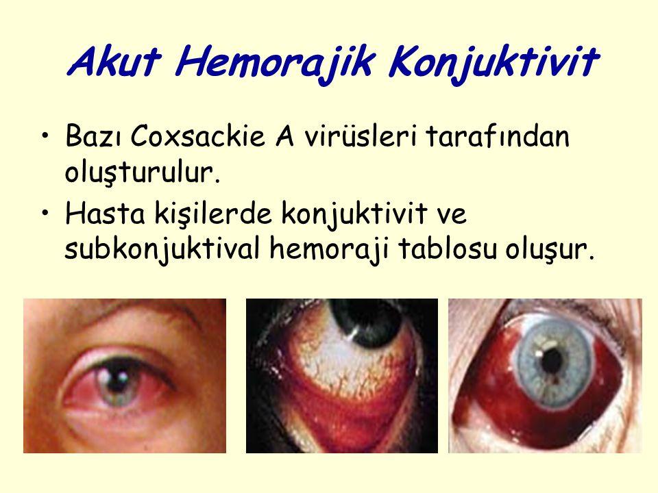 Akut Hemorajik Konjuktivit Bazı Coxsackie A virüsleri tarafından oluşturulur.