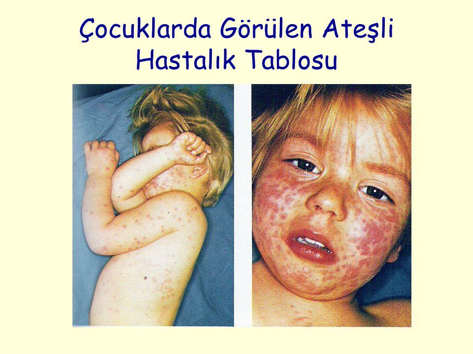 Çocuklarda Görülen Ateşli Hastalık Tablosu
