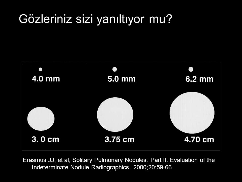 Erasmus JJ, et al, Solitary Pulmonary Nodules: Part II. Evaluation of the Indeterminate Nodule Radiographics. 2000;20:59-66 Gözleriniz sizi yanıltıyor