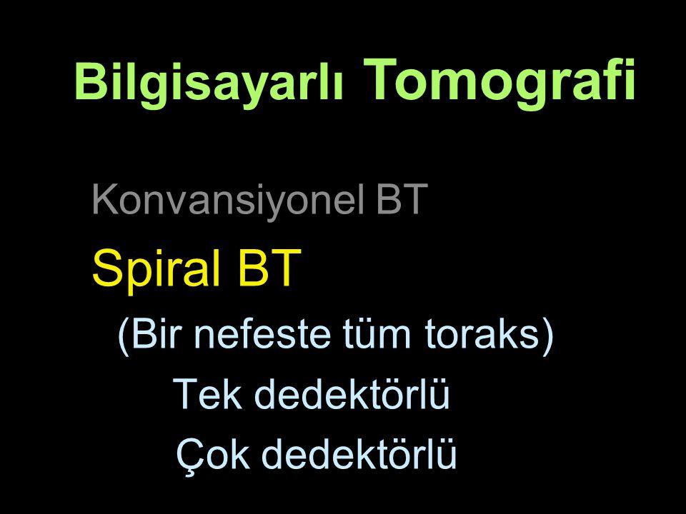 Konvansiyonel BT Spiral BT (Bir nefeste tüm toraks) Tek dedektörlü Çok dedektörlü Bilgisayarlı Tomografi
