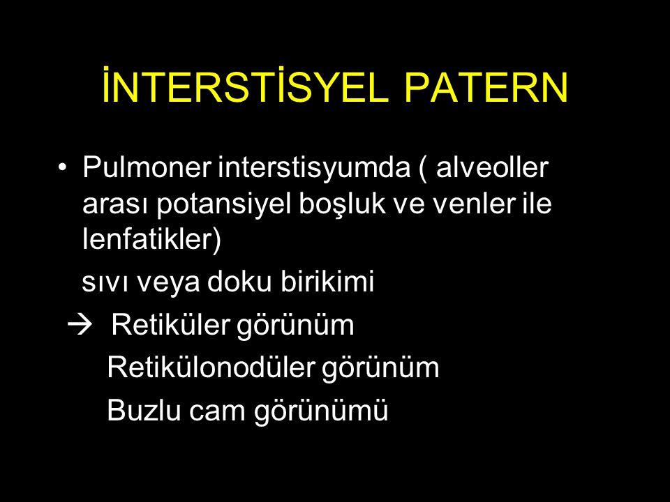 İNTERSTİSYEL PATERN Pulmoner interstisyumda ( alveoller arası potansiyel boşluk ve venler ile lenfatikler) sıvı veya doku birikimi  Retiküler görünüm Retikülonodüler görünüm Buzlu cam görünümü