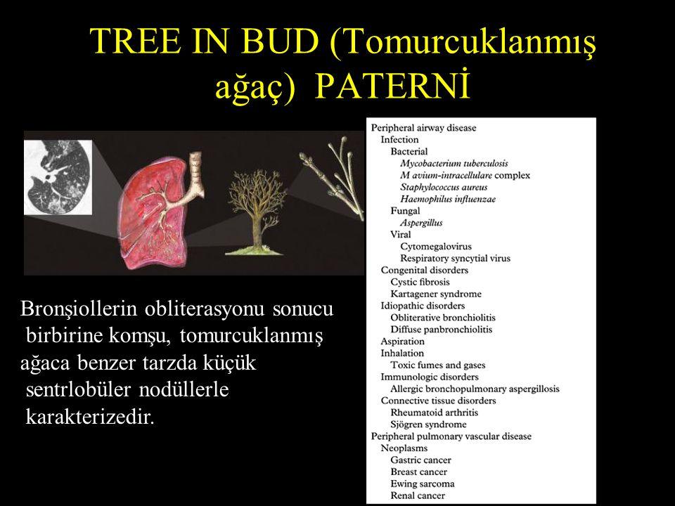 TREE IN BUD (Tomurcuklanmış ağaç) PATERNİ Bronşiollerin obliterasyonu sonucu birbirine komşu, tomurcuklanmış ağaca benzer tarzda küçük sentrlobüler nodüllerle karakterizedir.