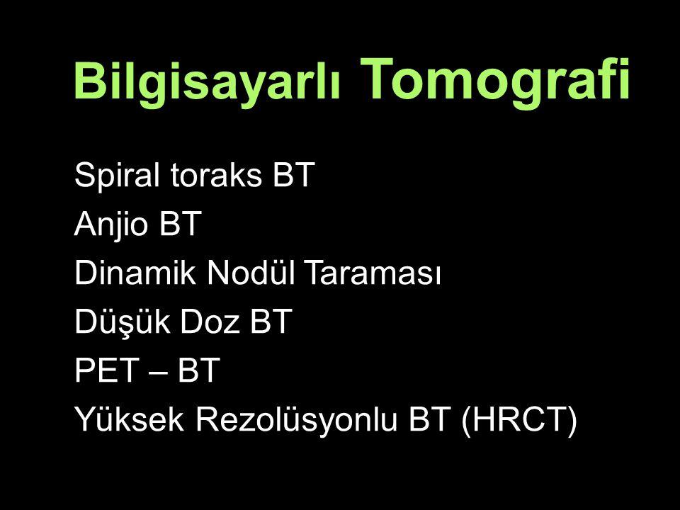 Spiral toraks BT Anjio BT Dinamik Nodül Taraması Düşük Doz BT PET – BT Yüksek Rezolüsyonlu BT (HRCT) Bilgisayarlı Tomografi