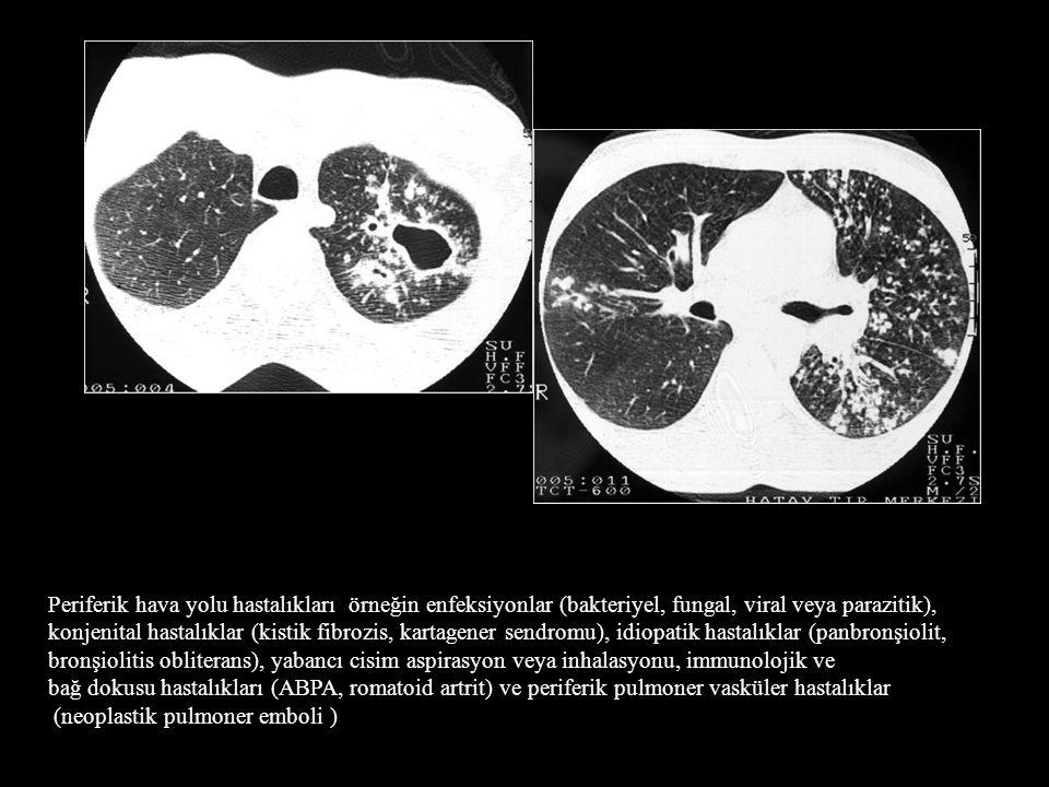 Periferik hava yolu hastalıkları örneğin enfeksiyonlar (bakteriyel, fungal, viral veya parazitik), konjenital hastalıklar (kistik fibrozis, kartagener sendromu), idiopatik hastalıklar (panbronşiolit, bronşiolitis obliterans), yabancı cisim aspirasyon veya inhalasyonu, immunolojik ve bağ dokusu hastalıkları (ABPA, romatoid artrit) ve periferik pulmoner vasküler hastalıklar (neoplastik pulmoner emboli )