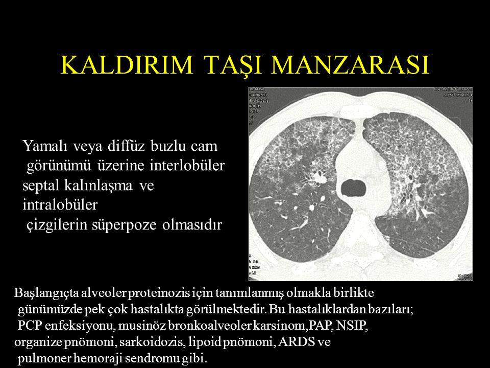 KALDIRIM TAŞI MANZARASI Yamalı veya diffüz buzlu cam görünümü üzerine interlobüler septal kalınlaşma ve intralobüler çizgilerin süperpoze olmasıdır Başlangıçta alveoler proteinozis için tanımlanmış olmakla birlikte günümüzde pek çok hastalıkta görülmektedir.