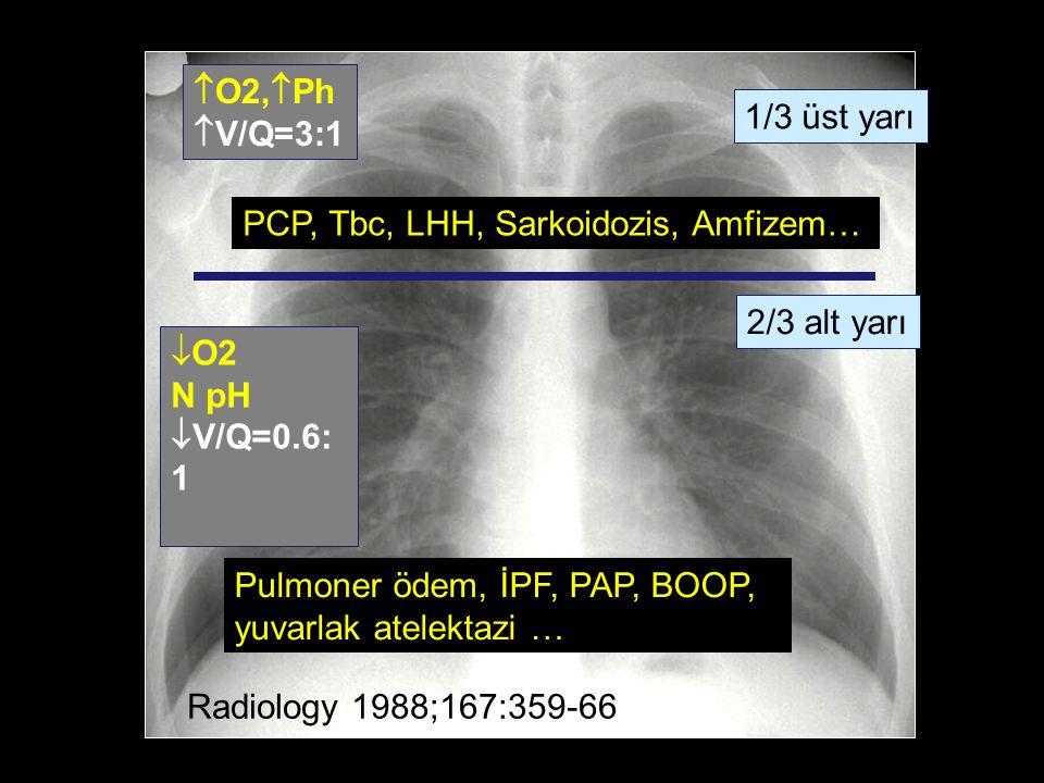  O2,  Ph  V/Q=3:1  O2 N pH  V/Q=0.6: 1 1/3 üst yarı 2/3 alt yarı Radiology 1988;167:359-66 PCP, Tbc, LHH, Sarkoidozis, Amfizem… Pulmoner ödem, İPF, PAP, BOOP, yuvarlak atelektazi …