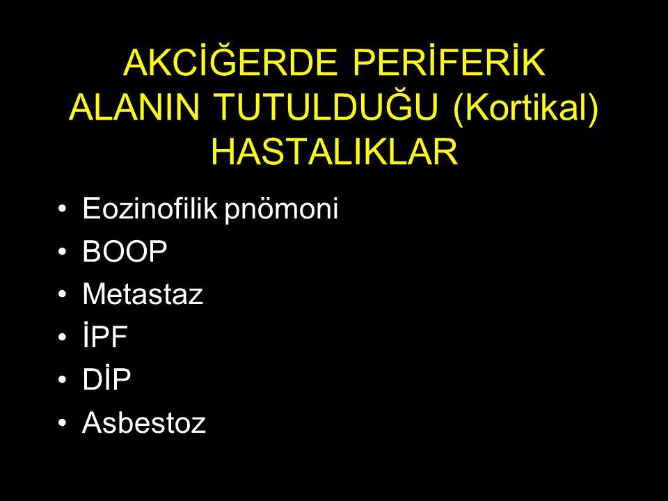 AKCİĞERDE PERİFERİK ALANIN TUTULDUĞU (Kortikal) HASTALIKLAR Eozinofilik pnömoni BOOP Metastaz İPF DİP Asbestoz