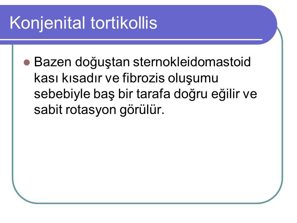 Konjenital tortikollis Bazen doğuştan sternokleidomastoid kası kısadır ve fibrozis oluşumu sebebiyle baş bir tarafa doğru eğilir ve sabit rotasyon gör