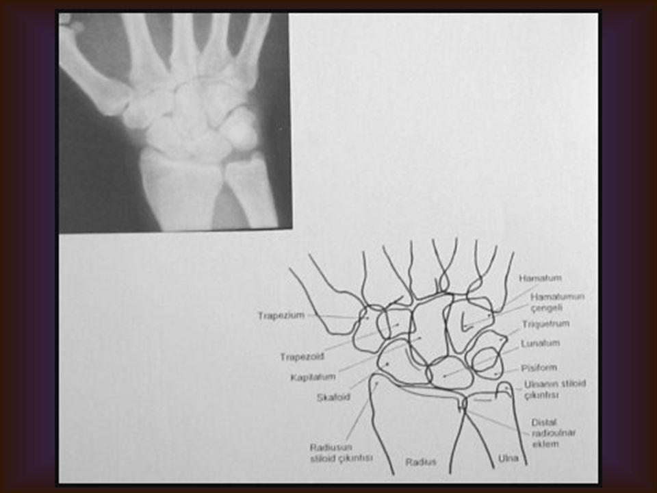 EL BİLEĞİ Görülebilen Yapılar El Bileği kemikleri Dıştan içe, Proksimal sıra: Skafoid veya naviküler, lunat, trikuetrum, pisiforme Distal sıra: Trapez