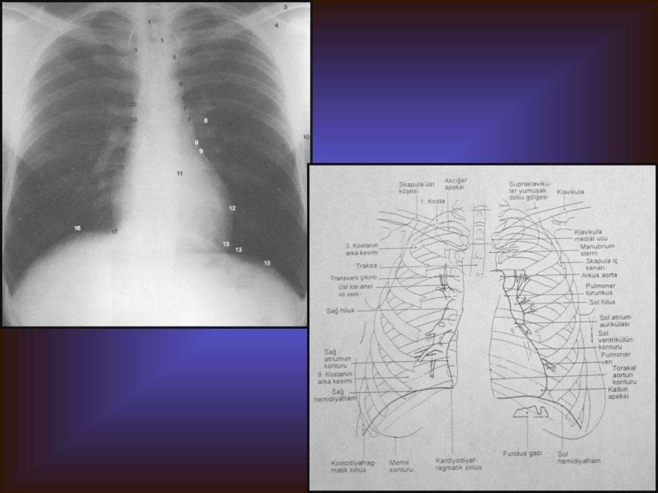 PA AKCİĞER Görülebilen Yapılar Kalp Trakea, ana bronşlar Hiluslar Akciğer alanları Kardiyo ve kostofrenik sinüsler Diyaframlar Çevre yumuşak doku ve k