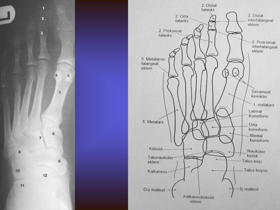 AYAK Görülebilen yapılar Kalkaneus Talus Naviküler Medial, lateral ve orta küneiform Kuboid Metatarsal ve falangial kemikler