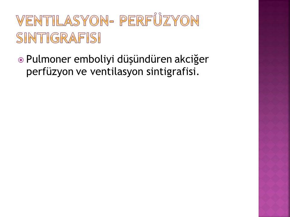  Pulmoner emboliyi düşündüren akciğer perfüzyon ve ventilasyon sintigrafisi.