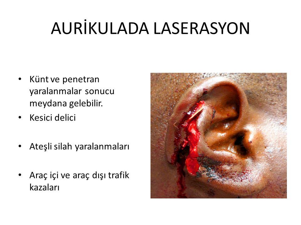 AURİKULADA LASERASYON Künt ve penetran yaralanmalar sonucu meydana gelebilir. Kesici delici Ateşli silah yaralanmaları Araç içi ve araç dışı trafik ka
