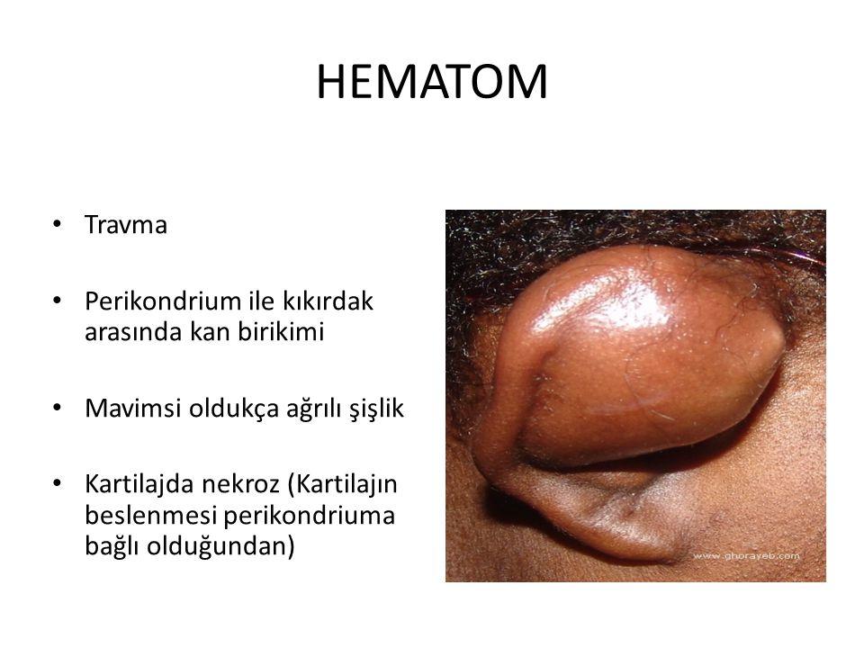 HEMATOM Travma Perikondrium ile kıkırdak arasında kan birikimi Mavimsi oldukça ağrılı şişlik Kartilajda nekroz (Kartilajın beslenmesi perikondriuma ba